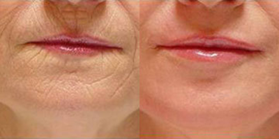 Collagen before and After Stay young