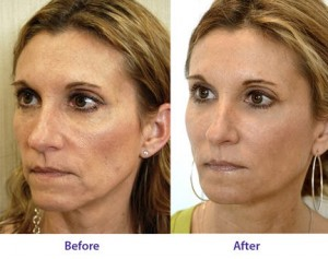 Collagen Before And After 6 Get Collagen Supplements