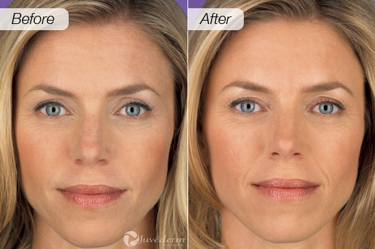 Collagen Before And After 7 Get Collagen Supplements
