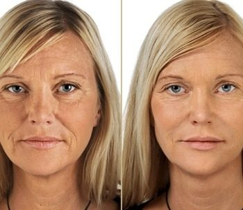 Get Collagen Before And After 6 Get Collagen