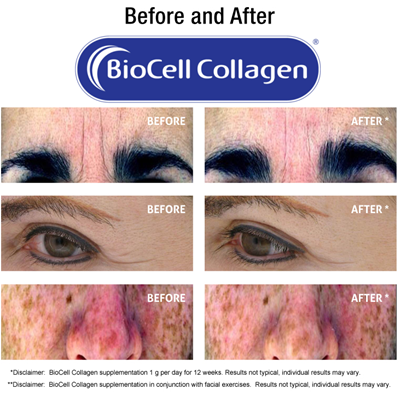 collagen_result_8years_term