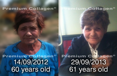 whatcollagen does_South Africa